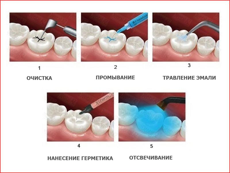 Герметизация фиссур зубов что это такое