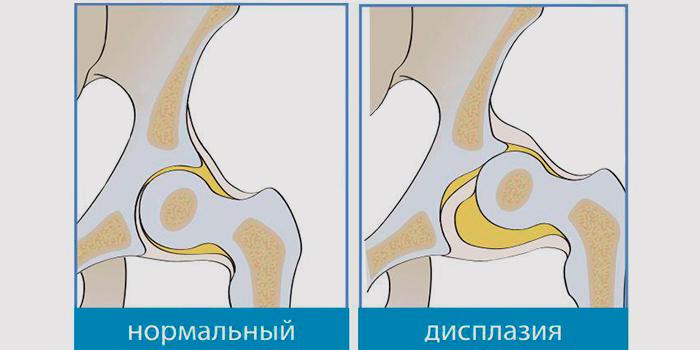 8 тазобедренный сустав у новорожденного ребенка характеризуется