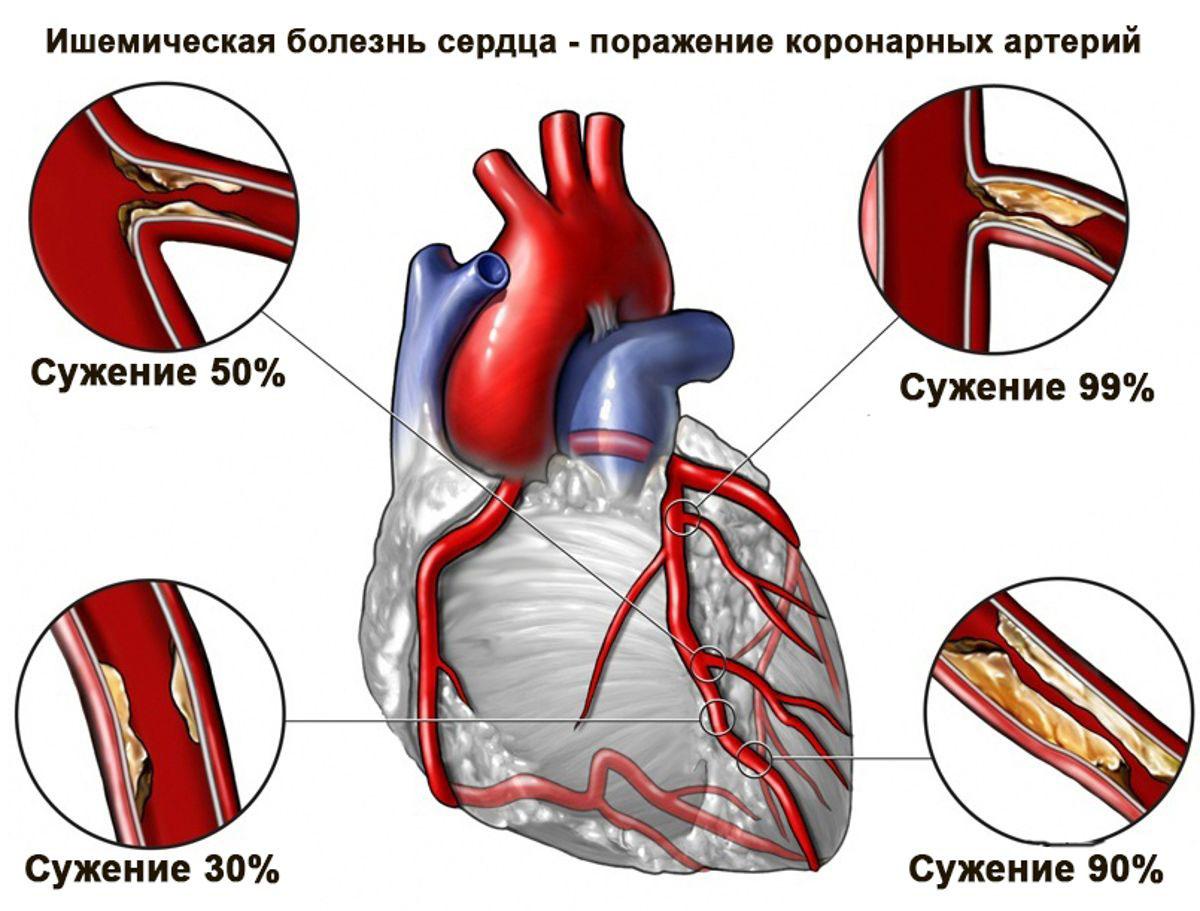 Болезни сердца: список, симптомы и лечение, большой обзор