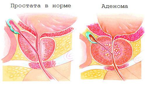 Рак предстательной железы симптомы фото
