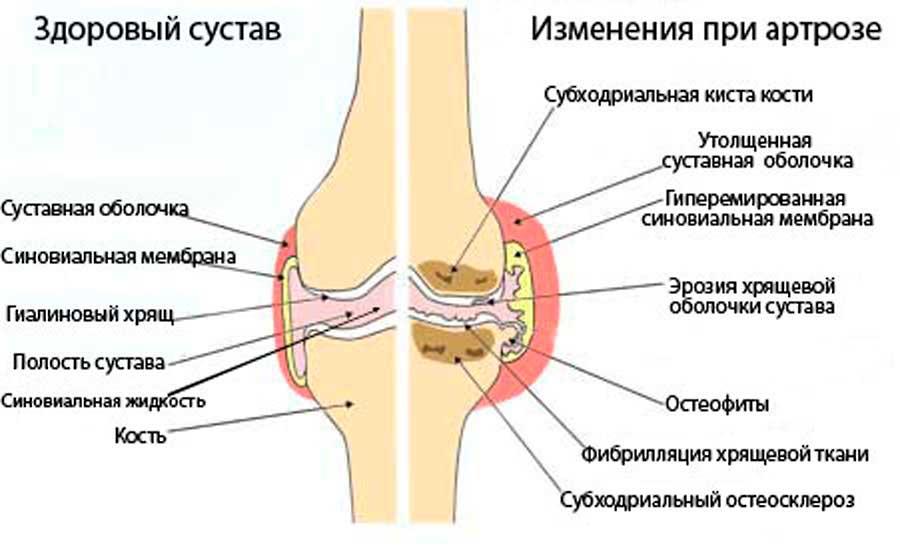 какой отличный признаки артроза колена посетила