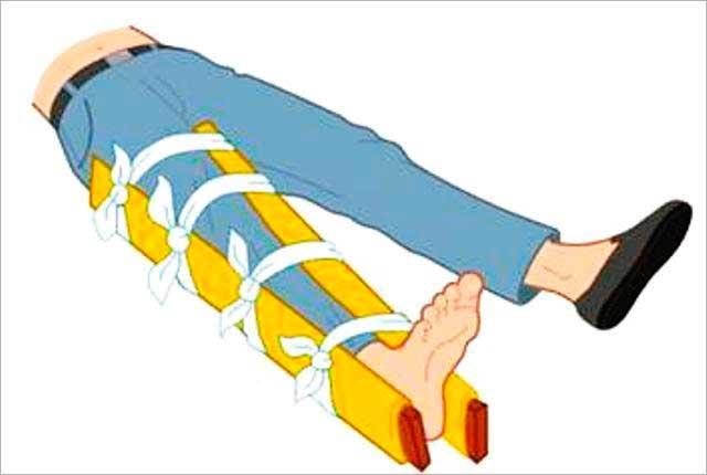 как накладывают шину при переломе тазобедренного сустава